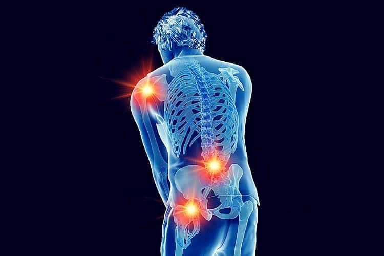 Arthrose Stadien, betroffenen Gelenke, Behandlung und Schmerztherapie
