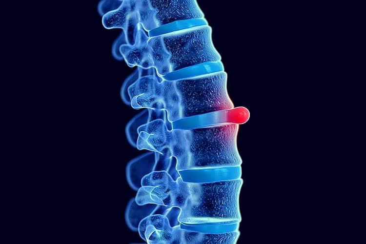 Bandscheibenvorfall Ursachen, Schulmedizinische Behandlungen und Schmerztherapie