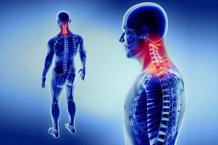 Nackenschmerzen Risikofaktoren und Behandlung
