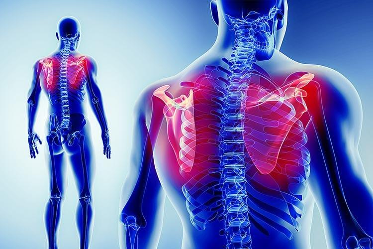 Schulterschmerzen Anatomie des Schultergelenks und Schmerztherapie